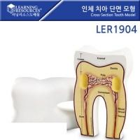 치아 단면모형 LER1904 [러닝리소스]